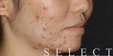 SELECT CLINIC(セレクトクリニック)のニキビ治療・ニキビ跡の治療の症例写真[ビフォー]