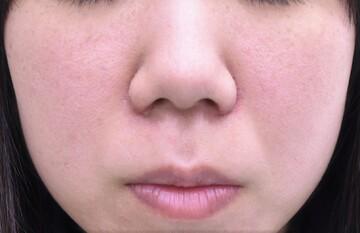 心斎橋コムロ美容外科クリニックの鼻の整形の症例写真[アフター]