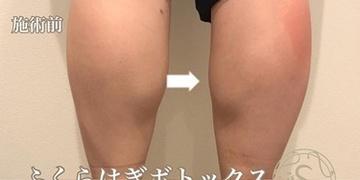 KOBE CLINIC 美容皮膚科・美容クリニックの痩身、メディカルダイエットの症例写真[ビフォー]