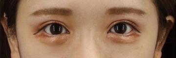 銀座長瀬クリニックの目・二重整形の症例写真[アフター]
