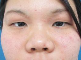 鼻のプロテーゼ・耳介軟骨移植(術後8ヶ月)の症例写真[ビフォー]