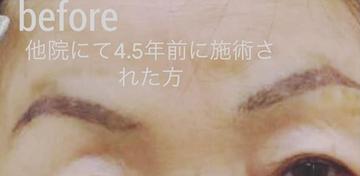 のアートメイクの症例写真[ビフォー]