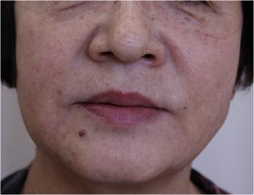 天神かよこクリニックの顔のしわ・たるみの整形(リフトアップ手術)の症例写真[アフター]