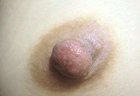 ガーデンクリニックの乳首・乳輪の整形の症例写真[アフター]