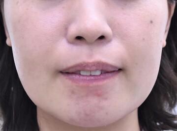 医療法人秀晄会 心斎橋コムロ美容外科クリニックの輪郭・顎の整形の症例写真[アフター]