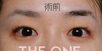 THE ONE.の目・二重整形の症例写真[ビフォー]
