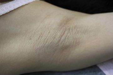 ペルラクリニック神宮前のわきが手術・多汗症治療の症例写真[アフター]