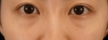湘南美容クリニック 渋谷院の目元整形・クマ治療の症例写真[ビフォー]