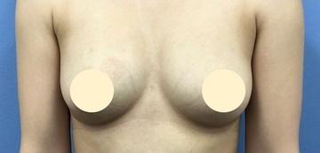 湘南美容クリニック川崎院の豊胸手術(胸の整形)の症例写真[アフター]