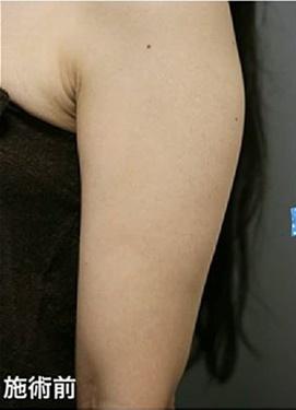 CHRISTINA clinic GINZA(クリスティーナクリニック銀座)の痩身、メディカルダイエットの症例写真[ビフォー]