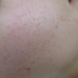 【フォト】ニキビ跡の陥凹性瘢痕治療の症例写真[ビフォー]