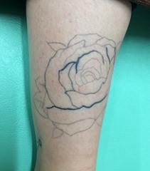 いろはビューティークリニックのタトゥー除去(刺青・入れ墨を消す治療)の症例写真[ビフォー]