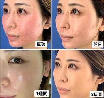 銀座長瀬クリニック 大阪院のシミ取り・肝斑・毛穴治療の症例写真