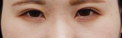 眼瞼下垂の症例写真[アフター]