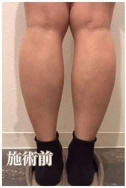 西宮SHUHEI美容クリニックの痩身、メディカルダイエットの症例写真[ビフォー]