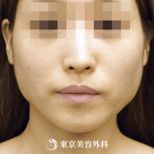 東京美容外科の顔の整形(輪郭・顎の整形)の症例写真[ビフォー]
