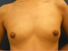 ■乳頭縮小術の症例写真[アフター]