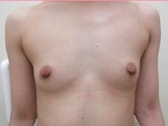 ■ピュアグラフト脂肪注入法の症例写真[ビフォー]