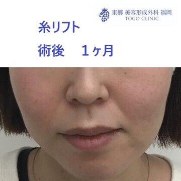 東郷美容形成外科 福岡の症例写真[アフター]