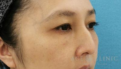 切らないクマ治療 ウルトラセルQ+・ヒアルロン酸の症例写真[アフター]