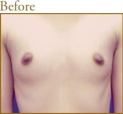 再生医療による幹細胞脂肪注入法豊胸術の症例写真[ビフォー]