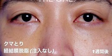 THE ONE.の症例写真[アフター]
