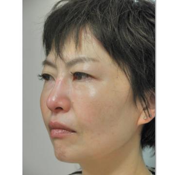 新宿美容外科クリニックの顔のしわ・たるみの整形(リフトアップ手術)の症例写真[アフター]