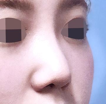 の鼻の整形の症例写真[アフター]