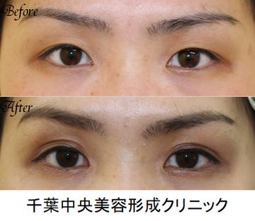 千葉中央美容形成クリニックの目・二重の整形の症例写真