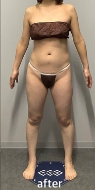 筋肉・美容クリニックの症例写真[アフター]