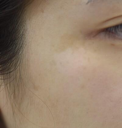 右こめかみの扁平母斑の症例写真[アフター]