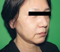 リードファインリフト+ヒアルロン酸注入 術前+術後の症例写真[ビフォー]