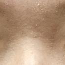 【眼瞼下垂+二重術】術前/術後1ヶ月[ビフォー]