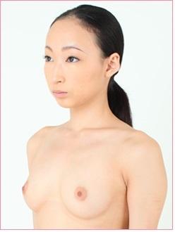 豊胸手術【人工乳腺法】の症例写真[ビフォー]