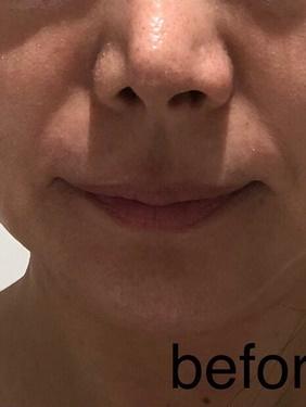 麻布十番今林クリニックのシワ・たるみ(照射系リフトアップ治療)の症例写真[ビフォー]