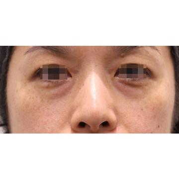 RDクリニックの目元の整形、くま治療の症例写真[ビフォー]