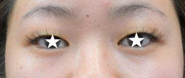 心斎橋コムロ美容外科クリニックの目・二重の整形の症例写真[ビフォー]