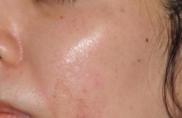ブリスクリニックの傷跡治療、ケロイドの症例写真[アフター]