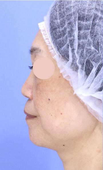 湘南美容クリニック 新宿本院の鼻の整形の症例写真[ビフォー]