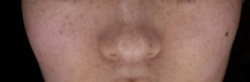 熊本かよこクリニックのシミ治療(シミ取り)・肝斑・毛穴治療の症例写真[アフター]