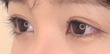 東京イセアクリニック 渋谷院の目・二重の整形の症例写真[アフター]