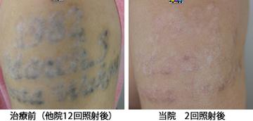 共立美容外科・歯科のタトゥー除去(刺青・入れ墨を消す治療)の症例写真