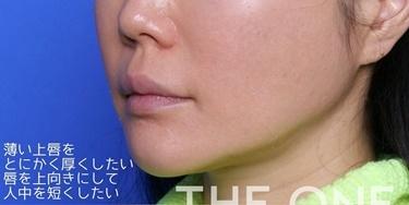 唇ヒアルロン酸注入&ボトックス注入の症例写真[ビフォー]