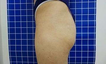 SELECT CLINIC(セレクトクリニック)の痩身、メディカルダイエットの症例写真[ビフォー]
