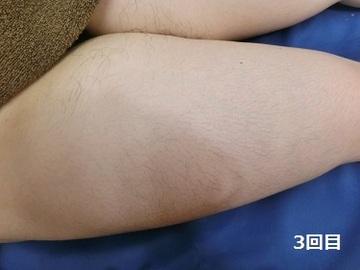 梅田フェミークリニックの医療レーザー脱毛の症例写真[アフター]