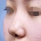 SBCプロテーゼ・鼻尖形成・鼻中隔延長/術後1ヶ月[ビフォー]