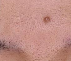やさしい美容皮膚科・皮フ科 秋葉原院のほくろ除去・あざ治療・イボ治療の症例写真[ビフォー]