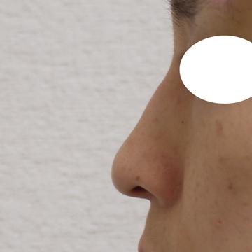 しらさぎ形成クリニックの鼻の整形の症例写真[ビフォー]