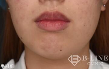 B-LINE CLINICの口もと、唇の整形の症例写真[ビフォー]