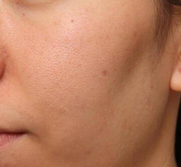 オザキクリニック LUXE新宿のシミ取り・肝斑・毛穴治療の症例写真[ビフォー]